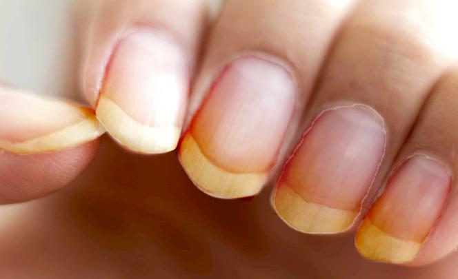 ¿Cuáles son los mejores remedios caseros para las uñas amarillas?