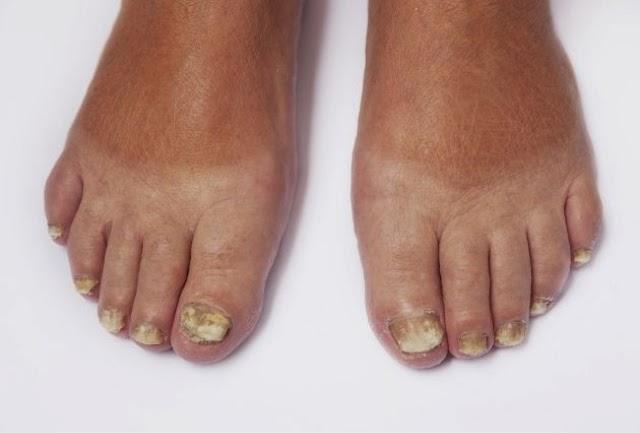 HC News: Tratamiento para hongos en las uñas