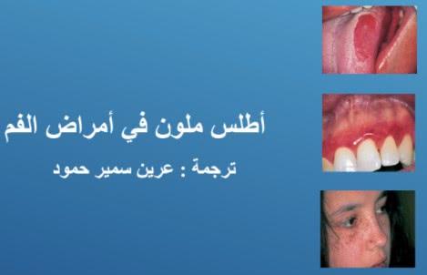 امراض الفم pdf بالصور