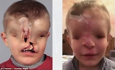 Holy Holy!!! You wouldn't believe the total makeover boy born without eye and nose got (disturbing images)