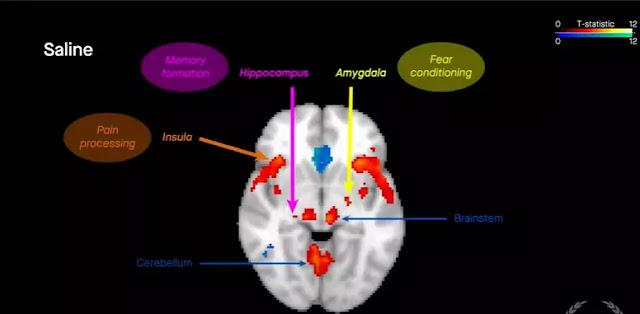 Functional MRI analysis