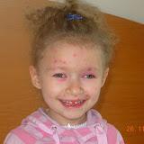 la varicella