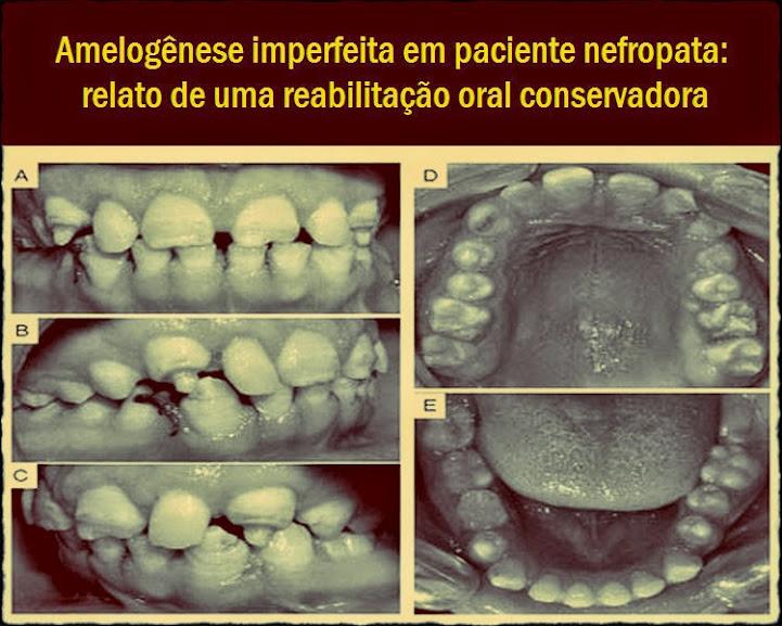 Amelogênese-imperfeita
