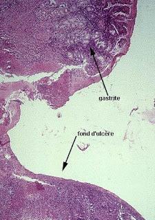 Melena Diagnosis | RM.