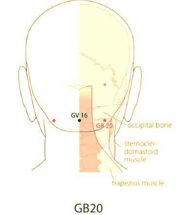 SaroEpic Acupuncture : Acupuncture points for paralysis
