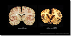 Chronic_Traumatic_Encephalopathy