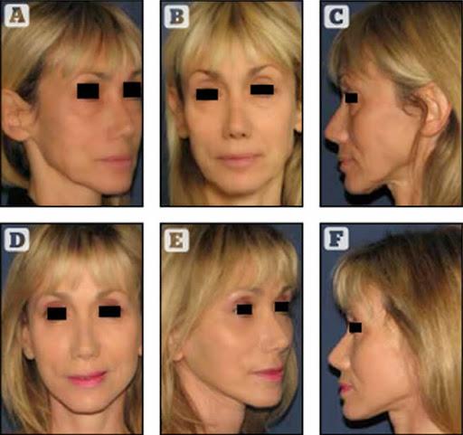 Copyright Dr. POIGNONE© : résultat paupières blépharoplastie et traitements combinés chez une patiente de 52 ans, avant après blépharoplastie et traitements combinés greffe de graisse et lumière flash