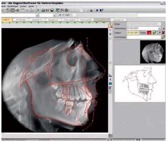 tomografia-volumetrica-ortodoncia