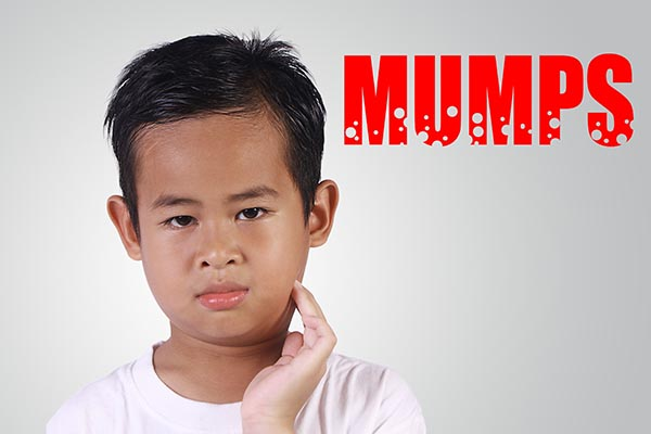 Mumps Remedy