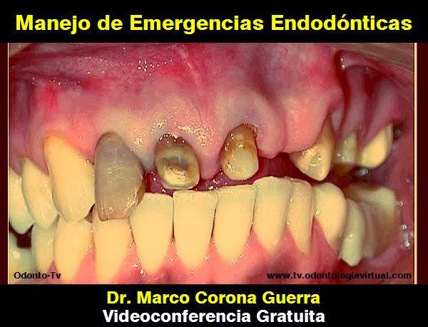 emergencis-endodonticas