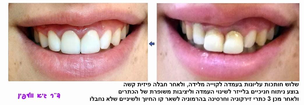 """שיניים ארוכות, שיניים בולטות, שיני ארנבת, ניבים של ערפד - ד""""ר גיא וולפין, אסתטיקה דנטלית"""