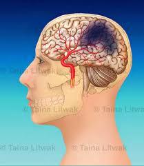 Sakit Kanker Otak & Pengobatannya
