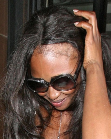 Hair Extensions Gone Wrong http://www.alphagirlhair.com/blogs/news/7424322-hair-extensions-gone-wrong