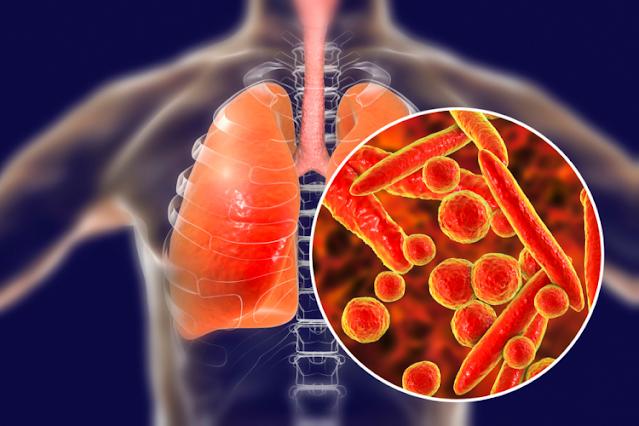 Tuberculosis là gì