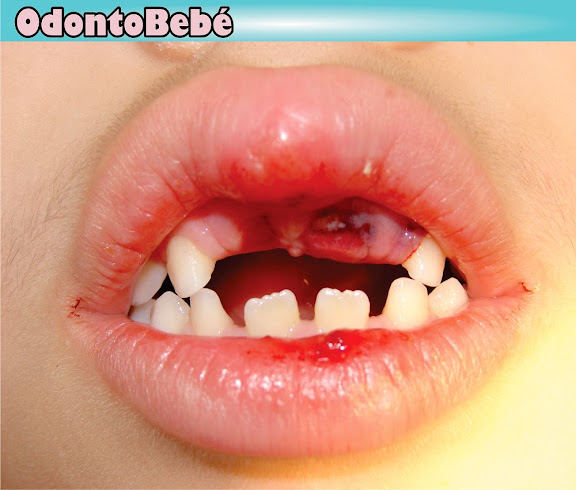 lesiones-dentales