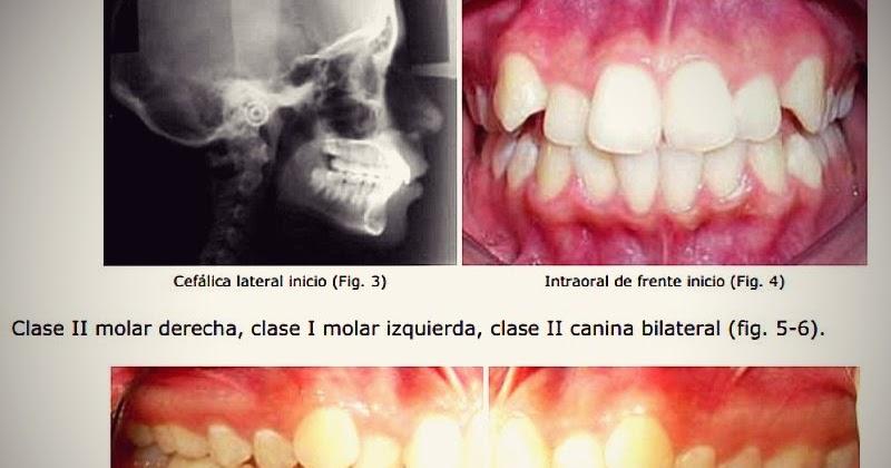 Pdf extracci n asim trica en el tratamiento de ortodoncia for W de porter ortodoncia