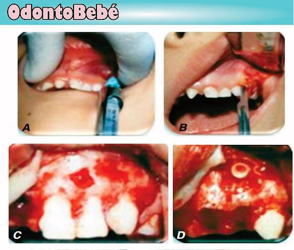 odontoma-cirugía