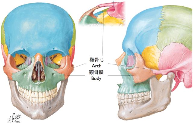 削骨手術,削顴骨,顴骨雕塑
