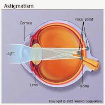 Cara Mencegah Mata Astigmatisma