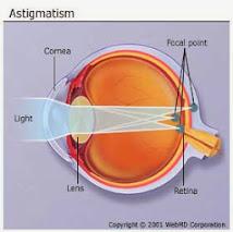 Pengobatan Penyakit Mata Silinder