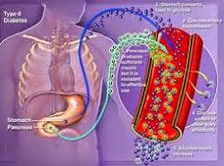 Obat Herbal Penyakit Diabetes Kencing Manis
