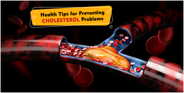 Health Tips for Preventing Cholesterol Problems