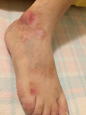 röda prickar på foten som kliar