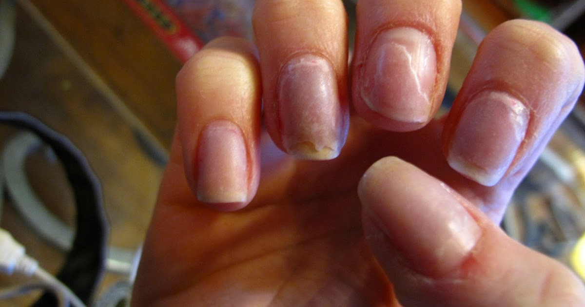 apl: My Mistake: Orly\'s Nail Rescue Kit