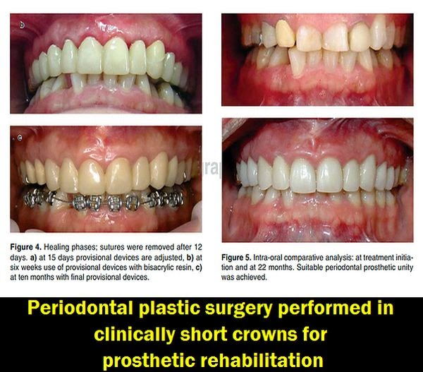 Periodontal-Plastic-Surgery