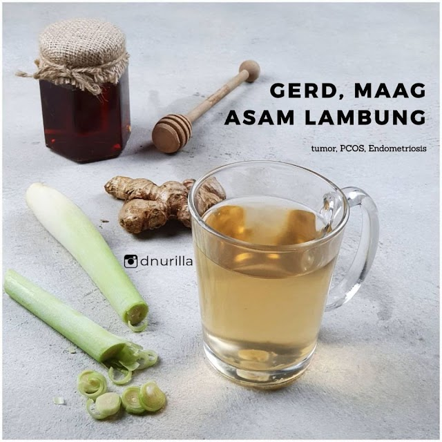 Begini Cara  Membuat Minuman jahe untuk asam lambung