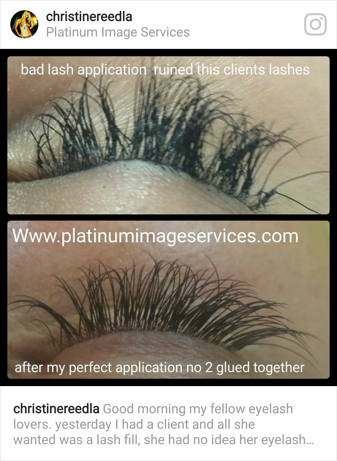 How To Check If You Have Bad Eyelash Extensions Get Eyelash Removal