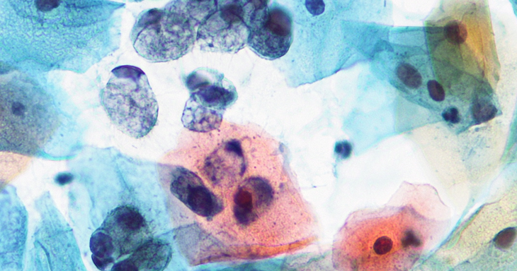 Citologia oncótica