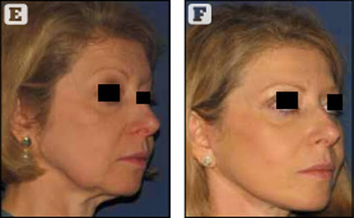 Copyright Dr. POIGNONE© : résultats paupières blépharoplastie et des traitements combinés chez une patiente de 48 ans, avant après blépharoplastie & traitements combinés greffe de graisse photothérapie