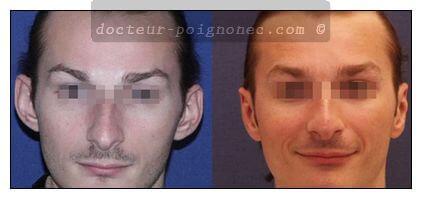 Otoplastie résultat avant après chirurgie esthétique des oreilles décollées Paris