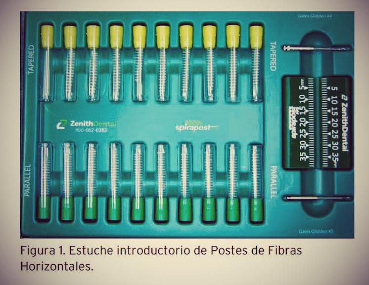 postes-fibras-horizontales