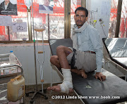He was hit by a mortar when marching from Taiz to Sana'a and he has the video to prove it.