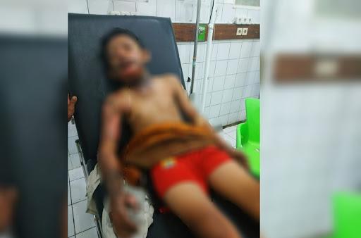 Korban luka bakar di Cisolok // Foto : Istimewa URC BPBD Cisolok