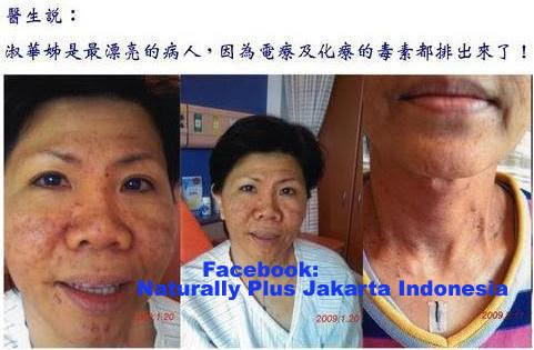 kanker+nasofaring7 Pengobatan Herbal Kanker Mulut