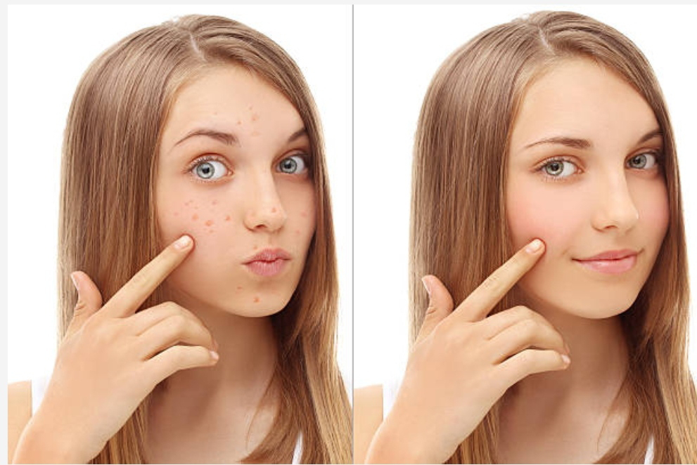 Unhealthy Foods To Avoid For Your Glowing Skin,10 best foods