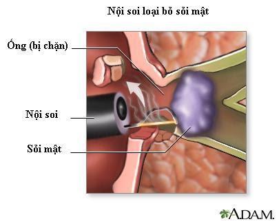 Phẫu thuật loại bỏ sỏi ống mật chủ