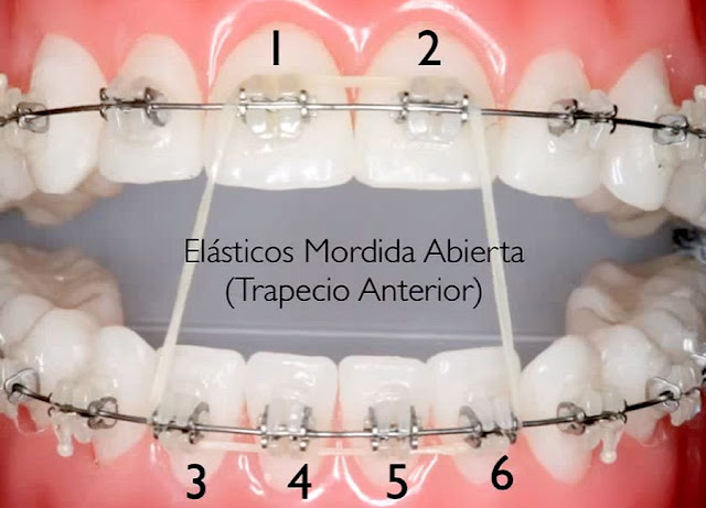 elasticos-intermaxilares-ortodoncia