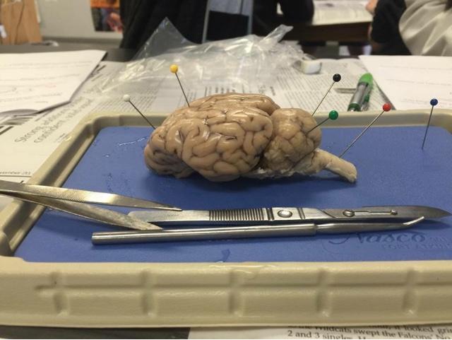 Alexandria\'s Journey Through Anatomy and Physiology: Brain ...