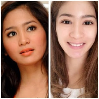 perbandingan wajah bunga zainal yang dulu dan sekarang