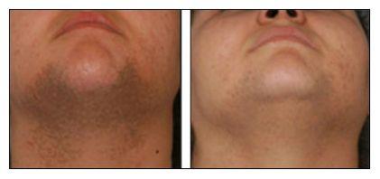 Épilation définitive laser photo avant après visage homme