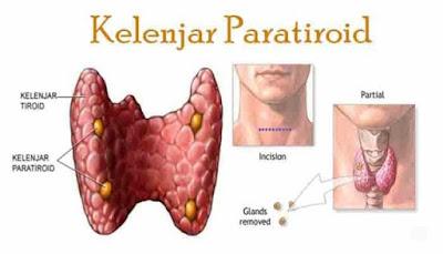 Tiroid dan paratiroid, berbeza ke?