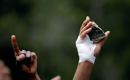A student with a bandaged hand holds a rock during clashes with police. Pictures: REUTERS/Siphiwe Sibeko