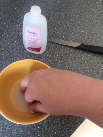 hur får man bort superlim från fingrarna