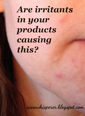 Trying to figure out your Adult Acne?  Irritation from ingredients doesn't have to be obvious.  Your pore linings can be bothered by products you're using, even when the rest of your skin is fine.  Find out more!