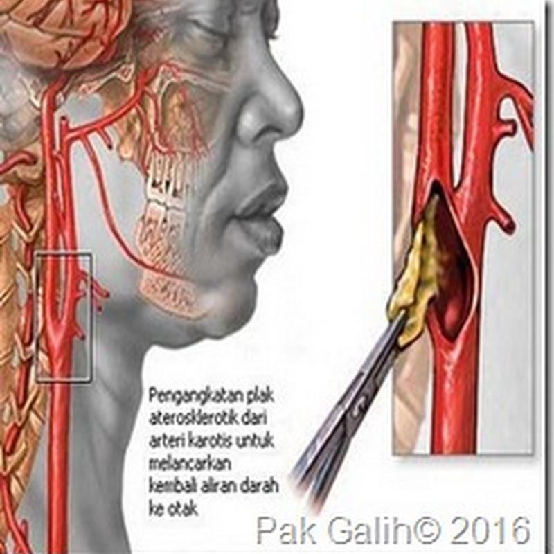 Gangguan pada peredaran darah