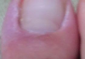ひょうそ(ひょう疽)の症状
